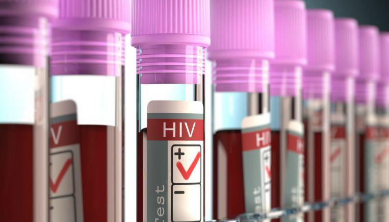 teste de hiv 216 400x800
